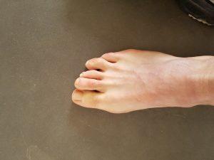 beoordelen voeten